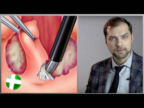 Как удаляют миндалины видео