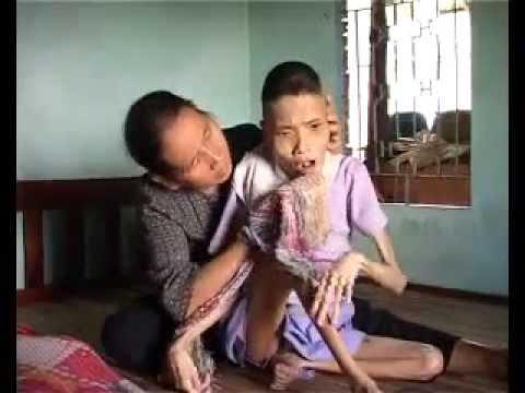 Hình Ảnh Nạn Nhân Chất Độc Màu Da Cam Gd Lam Ngoc Nhan