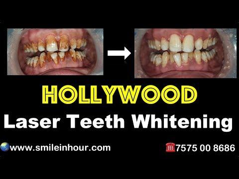 Cosmetic Implants Dentist Best in Ahmedabad Gujarat