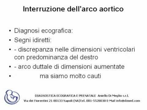 Interruzione dell\'arco aortico - YouTube