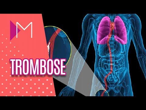 Trombose - Mulheres (26/06/18)