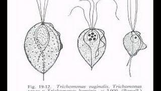 Trichomonas  vaginalis, Infeccion vaginal