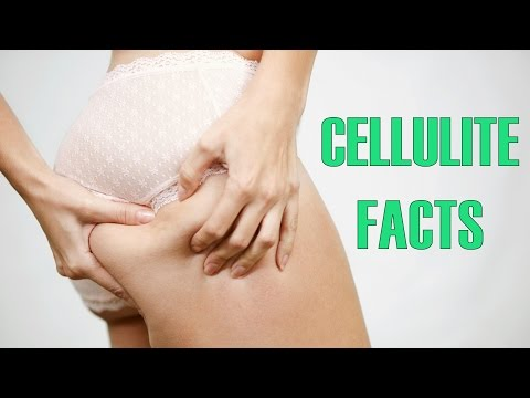 10 Facts You Probably Didn't Know About Cellulite