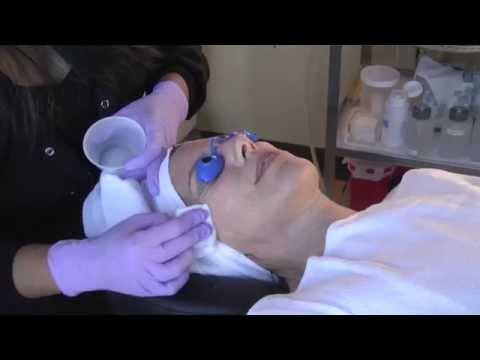 Chemoexfoliation   Eastside Dermatology and Skin Care Center
