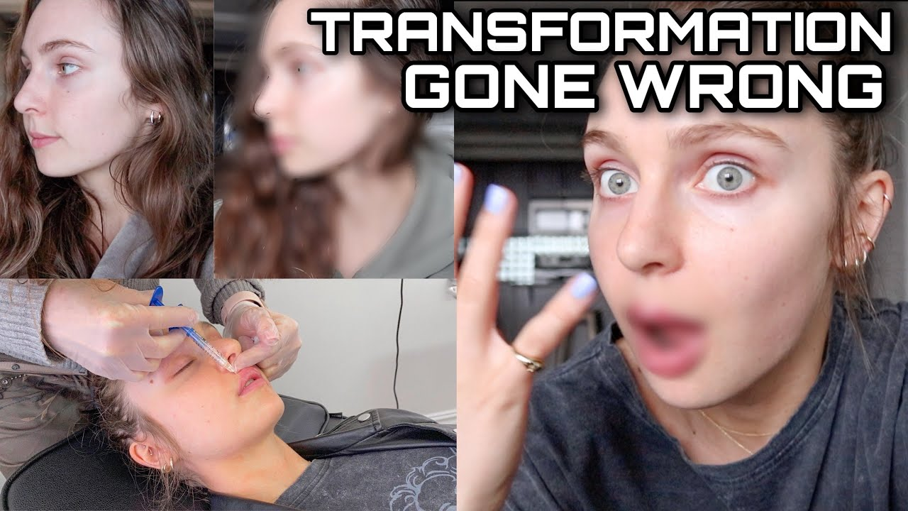 INTENSE LIP FILLER EXPERIENCE… I was not ready for this. attempted no makeup transformation...