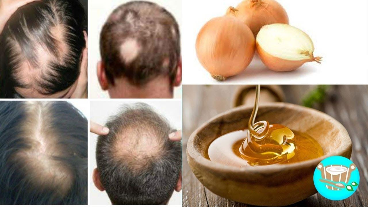 tratamiento natural para alopecia por estres