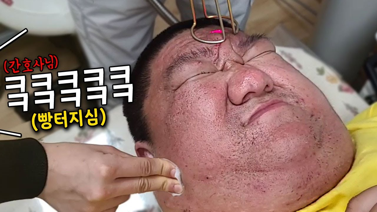 [약혐주의] 피부과 시술 도중 삼용이보고 빵터지신 간호사분ㅋㅋ