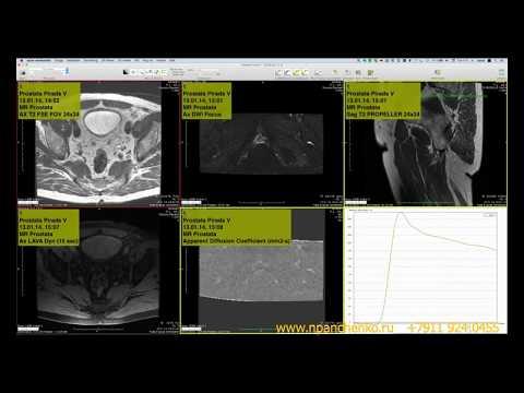 Динамическая оценка МРТ предстательной железы