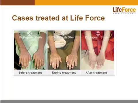 What is Lichen Planus? Presentation By Experts at Life Force