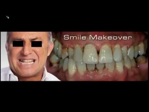 Digital Smile Design   An Interdisciplinary Approach