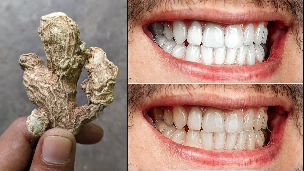गंदे पीले दांतों को 2 मिनट में दूध जैसा सफेद और चमकदार बना देगा ये तरीका | teeth whitening remedy