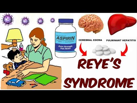 Reye's Sydrome