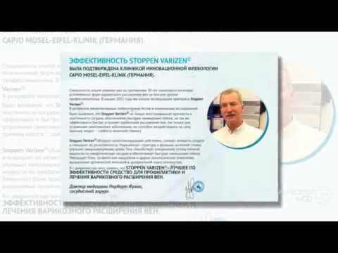 Смотрите Лазерное Лечение Варикозного Расширения Вен. Как Лечить Варикоз? Говорит Эксперт - Youtube
