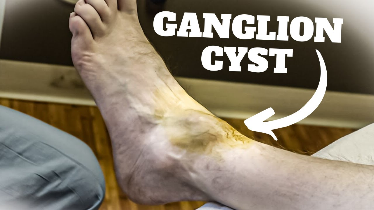 Aspiration of a Ganglion Cyst Procedure and Recovery Time