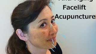 Anti-Aging Facelift Acupuncture - Massage Monday #227