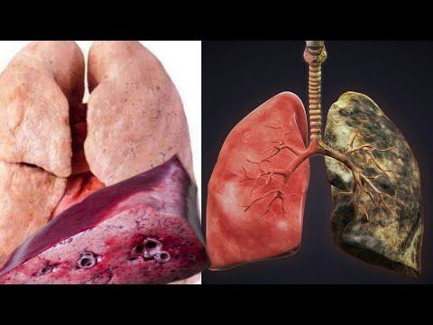 cara-mengobati-paru-paru-basah-secara-alami-dan-ampuh