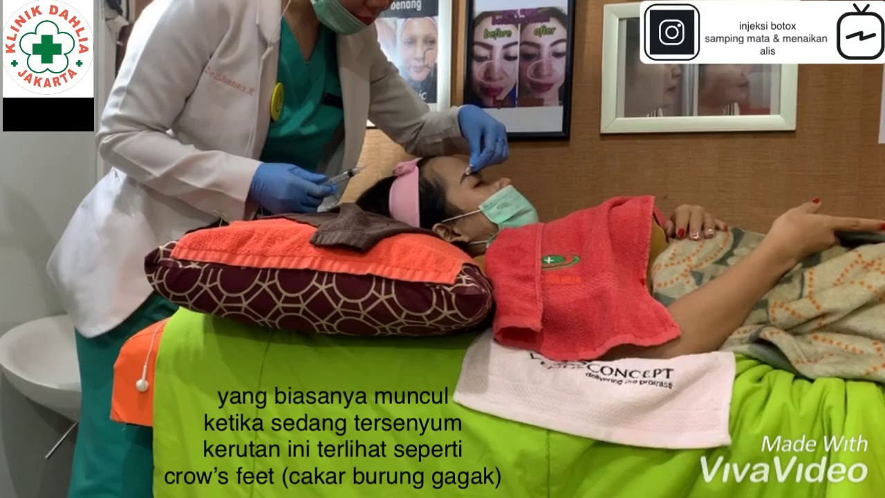 injeksi botox crow's feet kerutan samping mata @ dahlia clinic with dr. @ shanaz elizabeth - YouTube