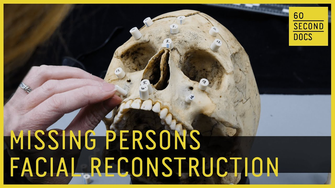 Missing Persons Forensic Facial Reconstruction