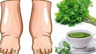 Dieser kraftvolle hausgemachte Tee hilft bei geschwollene Beine in wenigen Tagen!