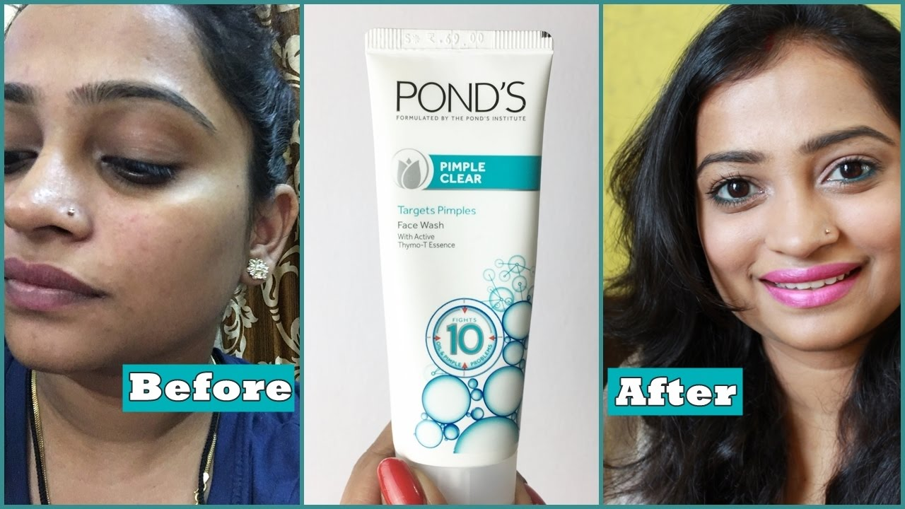 Pond S Pimple Clear Face Wash Review How To Remove Pimple Using Face Wash Effective Face Wash Youtube
