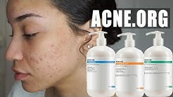 hqdefault - Acne.org Body Kit Review