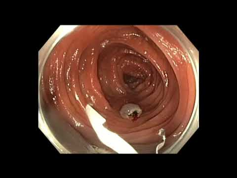 Colonoscopy: Colon Polyp with Cancer - which one needs surgery after EMR