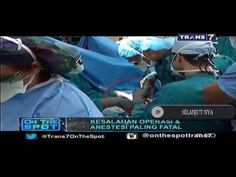 Kesalahan Operasi Dan Anestesi Paling Fatal VERSI On The Spot TERBARU