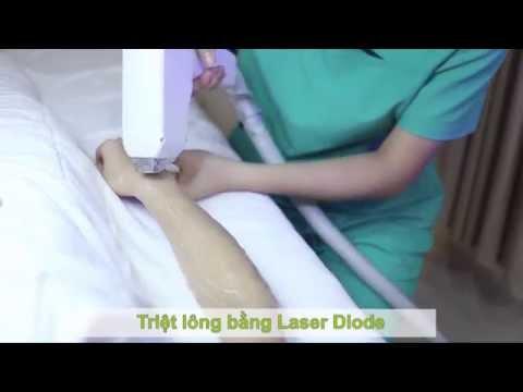 Triệt Lông Vĩnh Viễn Bằng Laser Diode