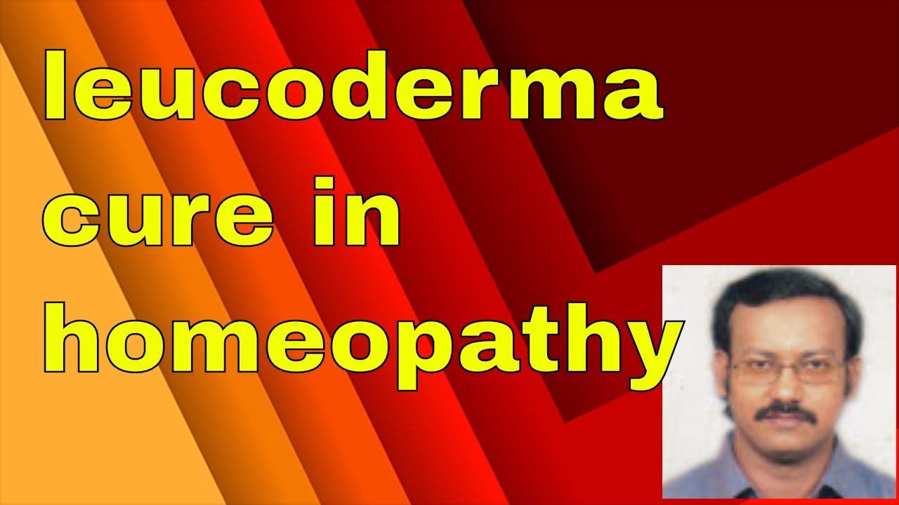 Leucoderma Homeopathic Medicine