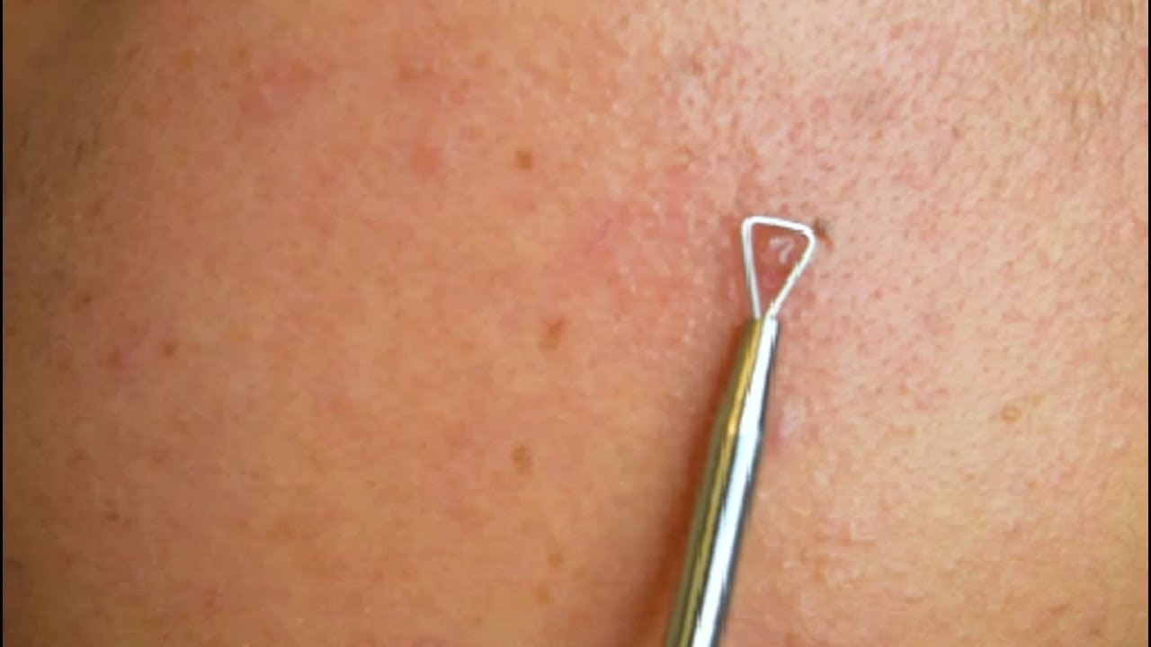 acne removal tool