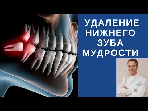 Удаление зуба мудрости – отзывы, цена, последствия, как