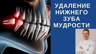 Удаление нижнего зуба мудрости(, 2015-08-15T17:54:55.000Z)