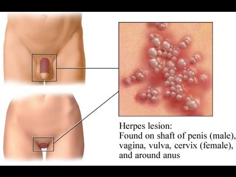 Can Laser Hair Removal Trigger Herpes Breakouts Youtube
