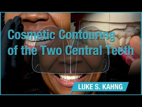 Cosmetic Contouring of the Two Central Teeth