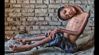 The Boy Who Sees The World Upside Down - Mahendra Ahirwar