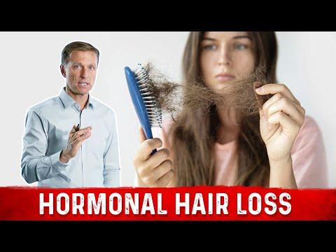 Hormonal Hair Loss