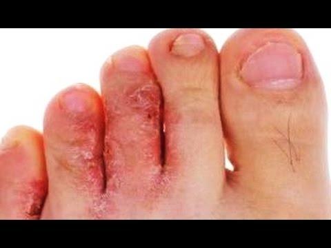 Грибок стоп, ногтей - эпидермофития, эпидермофитоны © Trichophyton  interdigitale