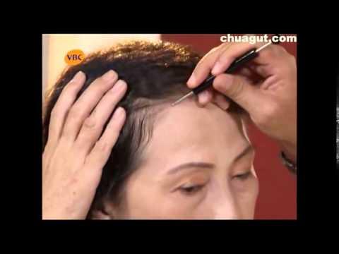 Chữa bệnh đau lưng bằng cách tự bấm huyệt (chuagut.com)