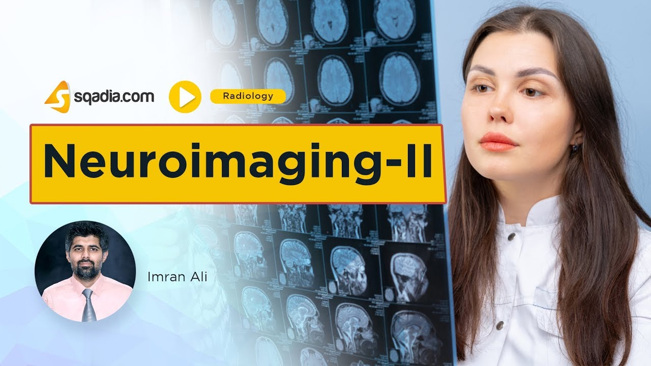 Neuroimaging -II | Radiology Online Lectures | Medical Student Education | V-Learning #MedicalRadiology