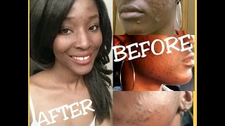 How I Cleared my Acne(Cyst) & Dark spots in 1week (cHECK OUT MY RECENT VIDEOS)