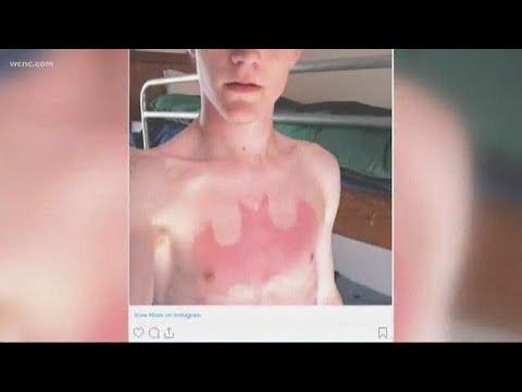 Doctors warn of 'sunburn tattoo' trend