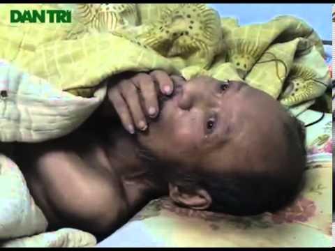 Đau lòng Người đàn ông bại liệt bị vợ con bỏ đói trong căn nhà khoá cửa