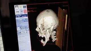 Storie d'Egitto Analisi Radiologiche delle Mummie