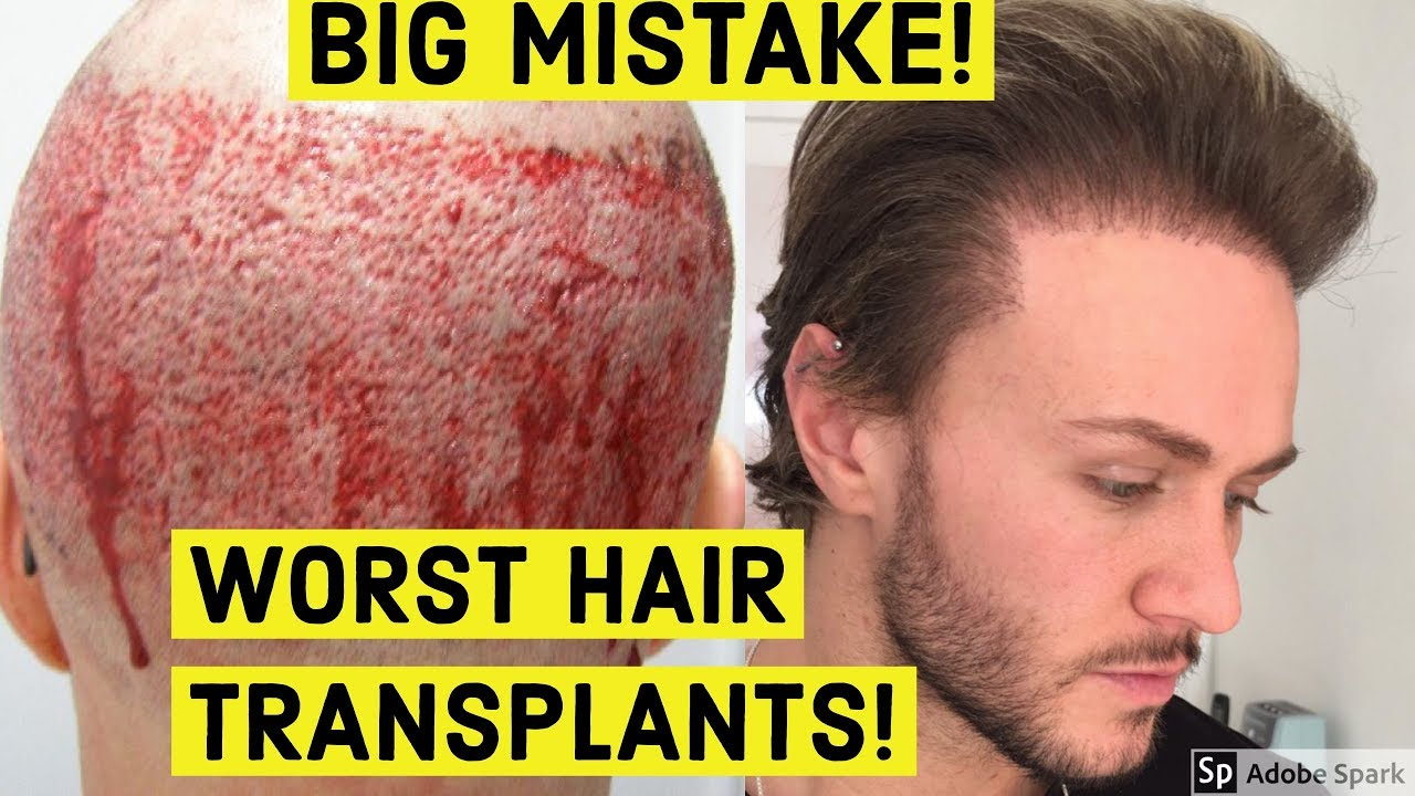 Worst Hair Transplant Results Ever Youtube