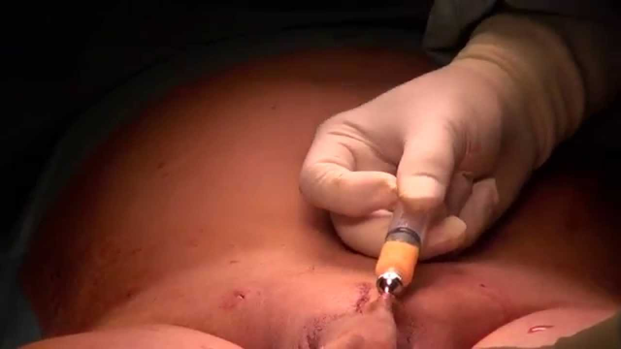 The most effective surgery for penis enlargement