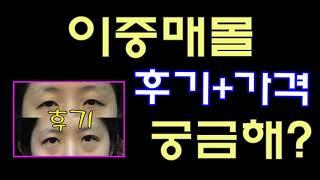 청담코지 이중매몰 후기+비용 보러가기!