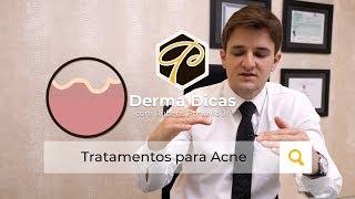 Melhores tratamentos para cicatriz de Acne - Rubens Pontello Jr.