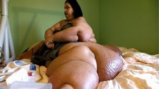 Repeat youtube video Fattest Woman In The World 1,036 lbs - Mayra Rosales