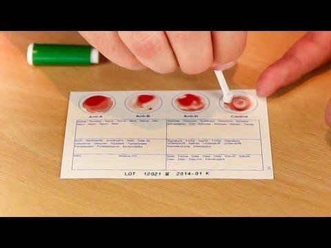 Eigene Blutgruppe per Schnelltest bestimmen