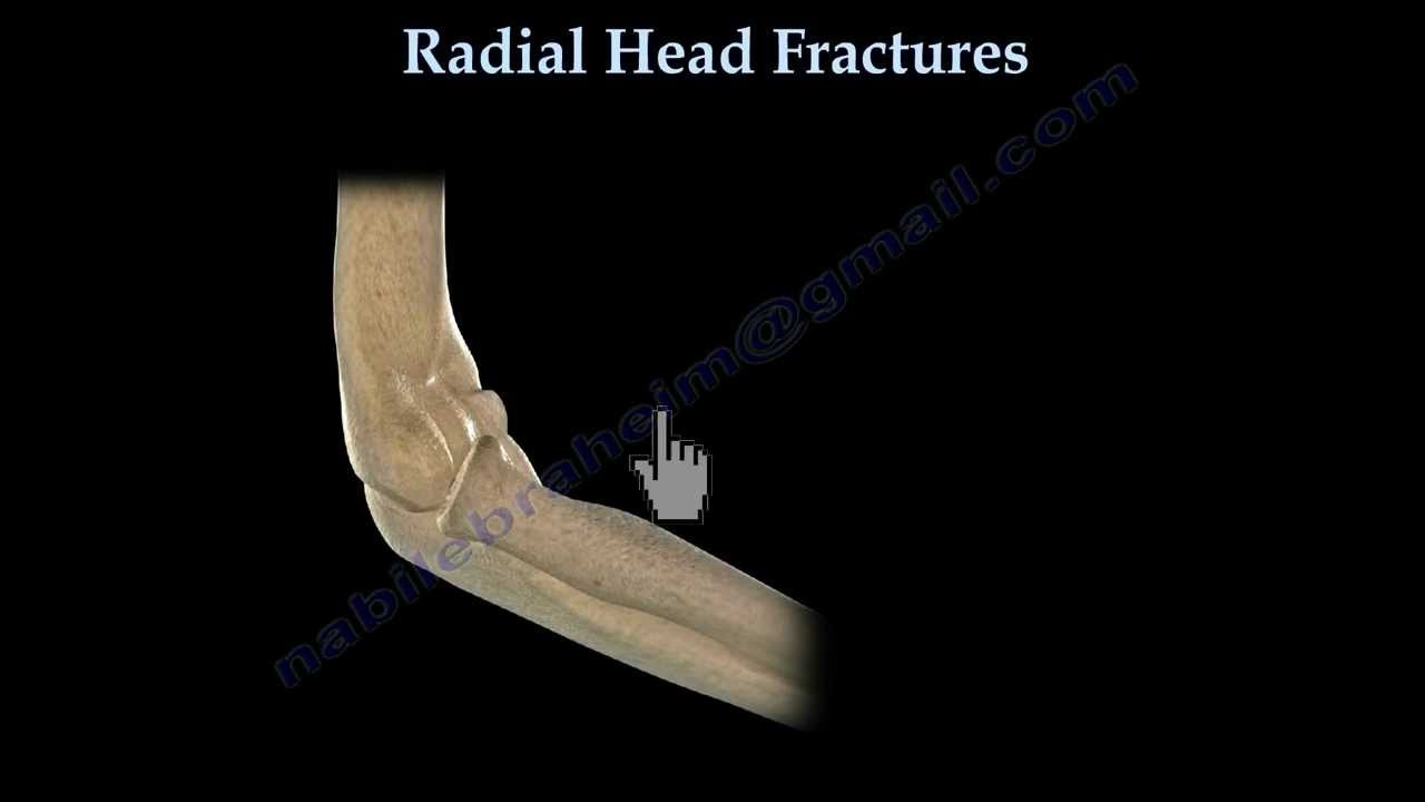 Radial Head Fracture- Everything You Need To Know- Dr. Nabil ...